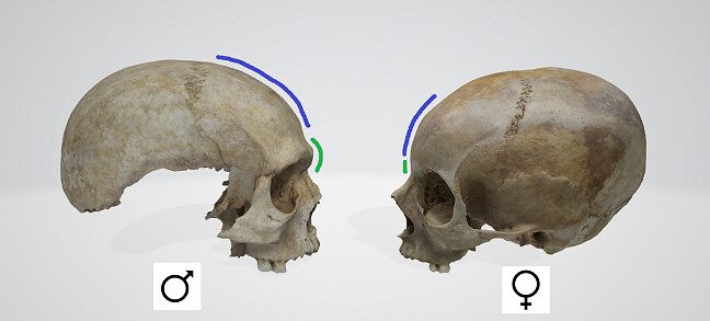 A male and female skull facing each other in opposition, highlighting the differences in the glabella and supra-orbital ridges