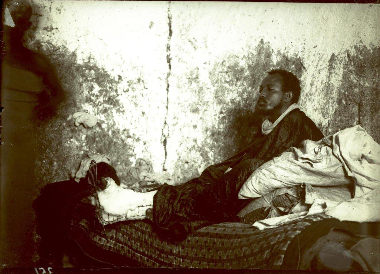 346. Абиссиния, Аддис-Абеба. Больной в госпитале