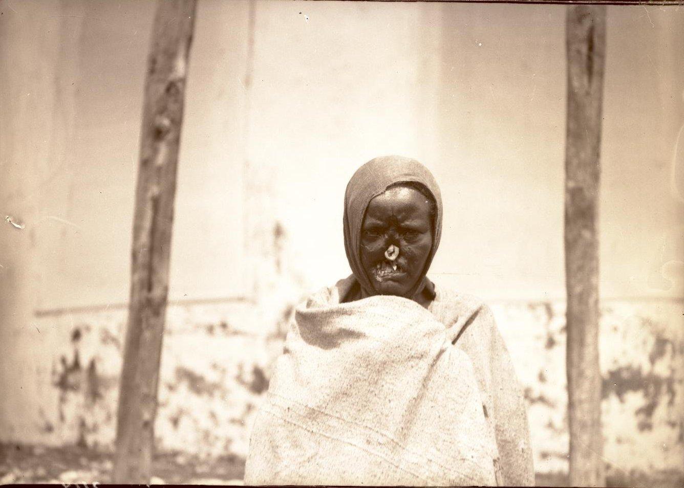 344. Абиссиния, Аддис-Абеба. Прокаженный до операции