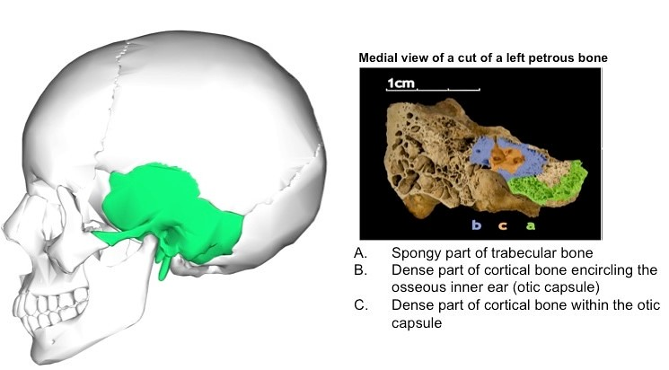 Image showing the location and anatomy of the petrous part of the temporal bone