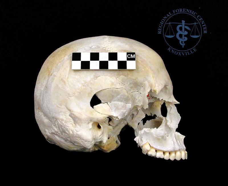 A skull showing blunt force trauma