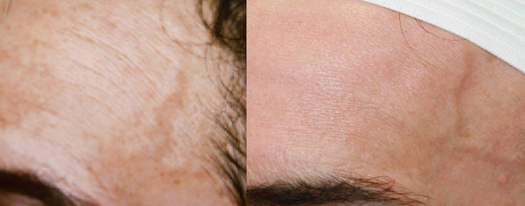 多段式光波BBL可以治療很多皮膚症狀,像是酒糟性皮膚炎、回春、除斑、美白、下垂、除皺、抗老化、泛紅等等這些皮膚問題。