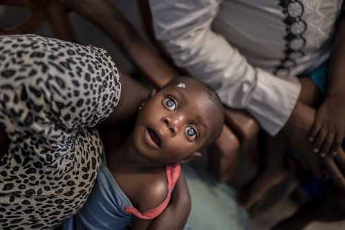 A portrait of a child with double cataract, who is waiting for eye surgery | by IAPB/VISION 2020
