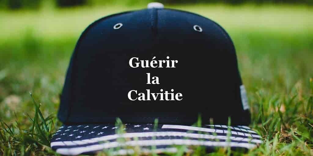 faire les courses pour bonne vente belle et charmante Une casquette qui inverse la calvitie masculine ...