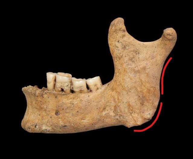 Male mandible