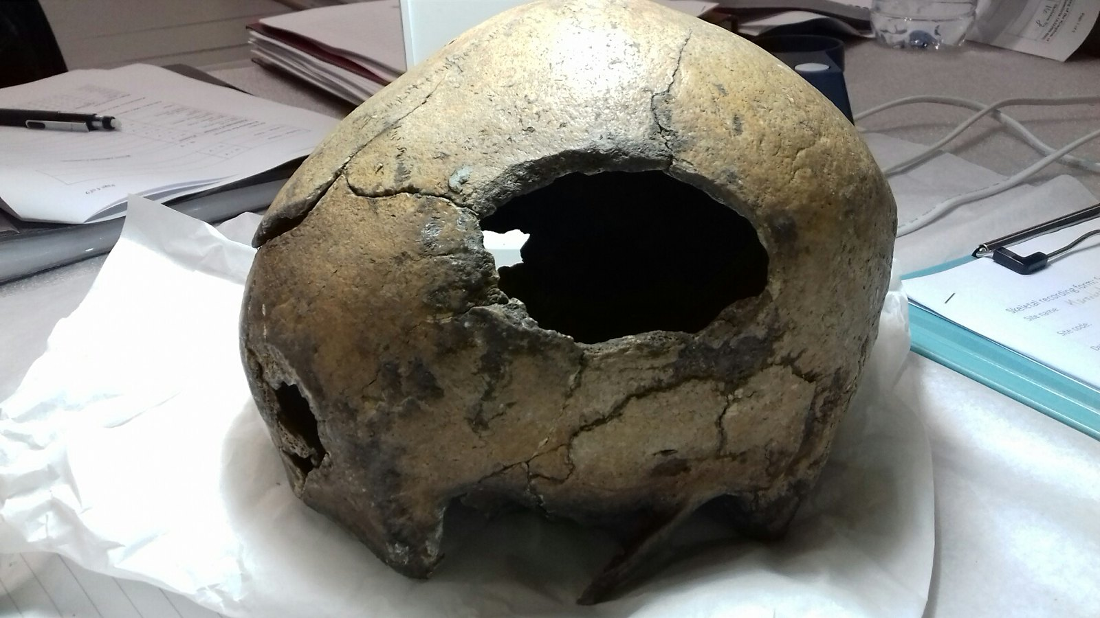 A large hole produced in the side of a skulls as the result of sharp force injury from a weapon such as a sword. This injury is consistent with the cause of death.