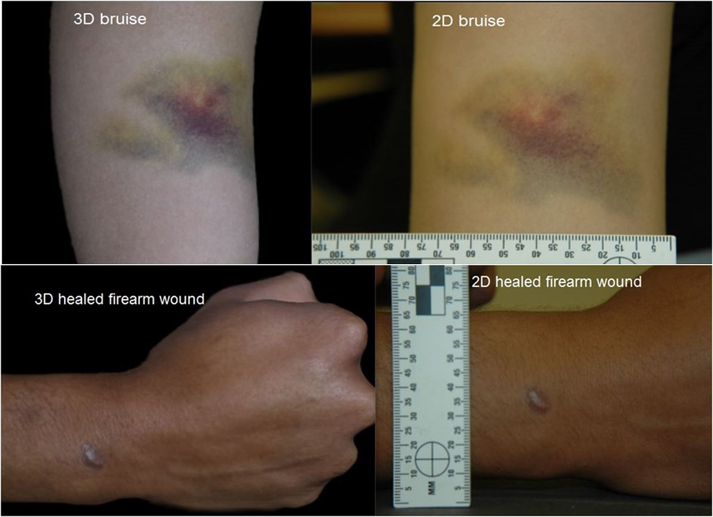An image showing both two dimensional and three dimensional images of the same trauma on a living human. The first is bruising to the arm and the second is a healed injury from a firearm