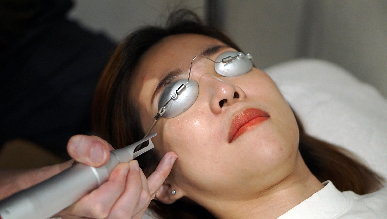 Clifford Clinic Freckles Pigmentation Removal Singapore Pico Laser