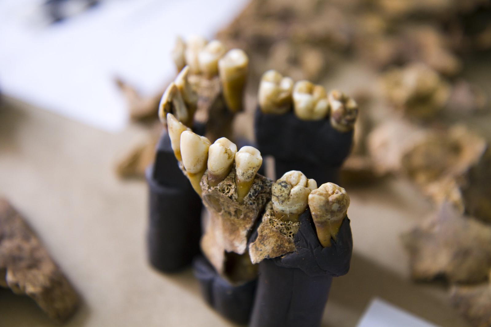 An upper jaw which has been embedded with teeth facing outwards in a black Plasticine type matrix to help hold the fragments together for ease of recording. This jaw is part of an individual recovered from a forensic context