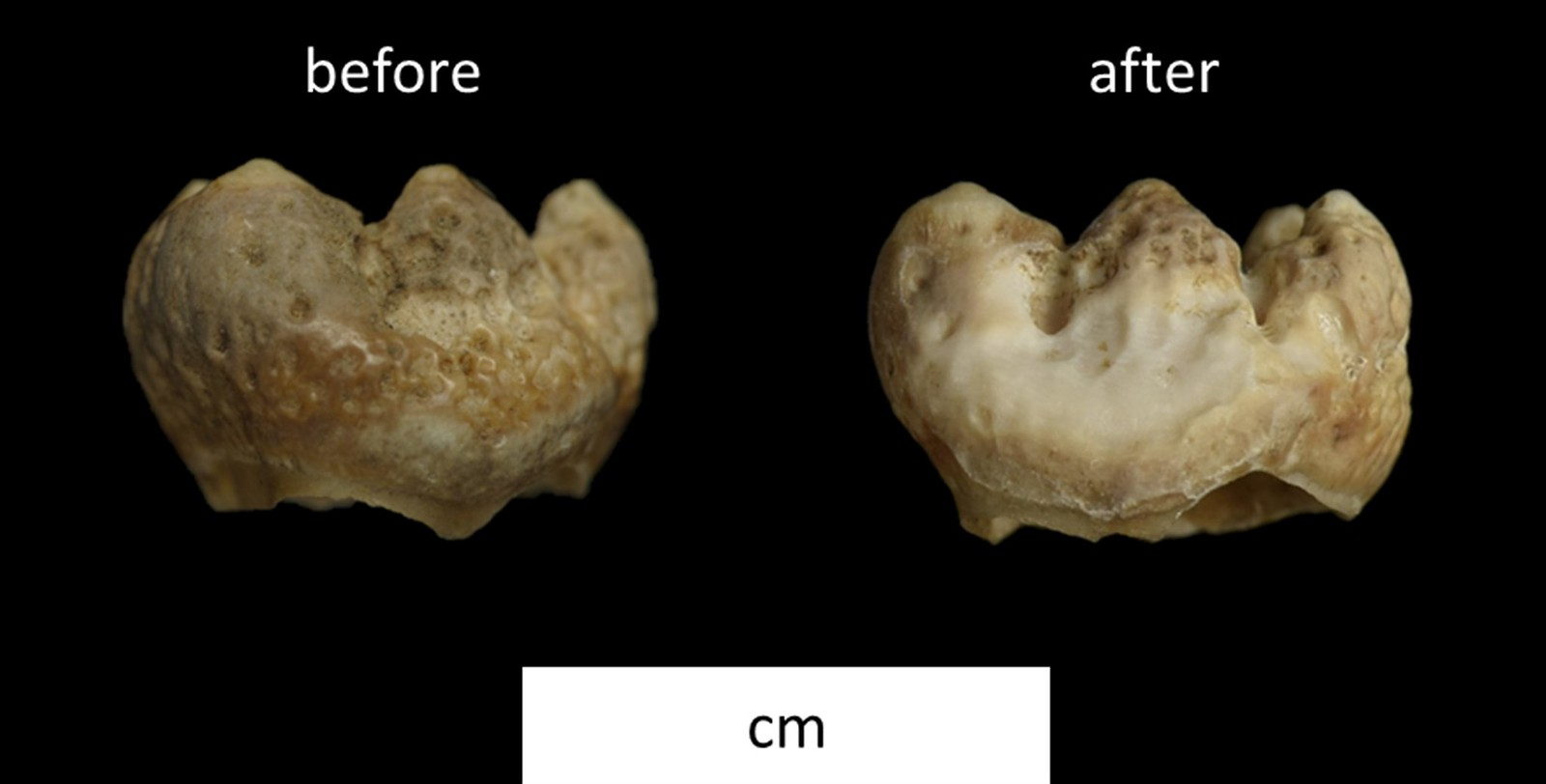 A before (left) and after (right) picture of a tooth that has been sampled. The only difference is a slight acid etch to the surface