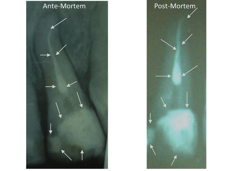 Two radiographs: The one on the left is an ante-mortem radiograph of a tooth and the one on the right was taken post-mortem. Arrows on both radiographs highlight similar features of dental fillings between the two on both the root and the crown