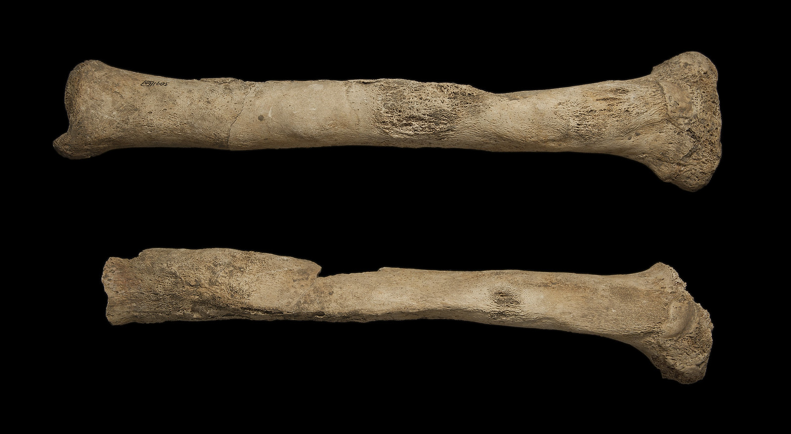 Right and left tibia showing an abnormally thickened appearance, along with new bone formation on the outer surface