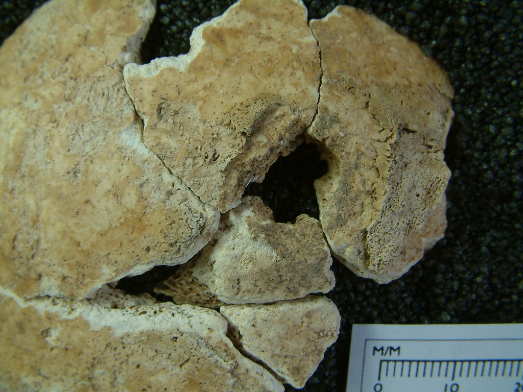 A part of the cranium which has been fragmented postmortem, but has a destructive lesion with some new woven bone surrounding it.