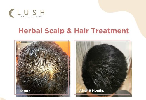 Herbal Hair Treatment before after result