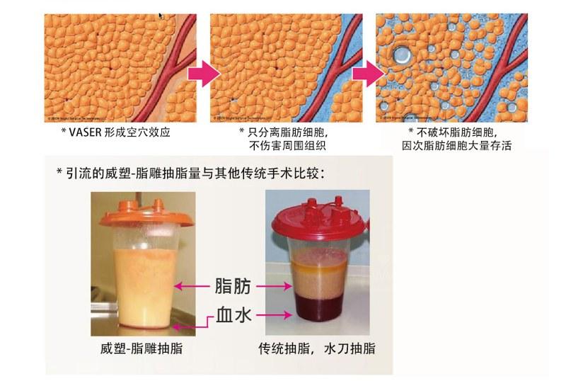 dr daid loh surgery23VASER LipoSelection fat transfer