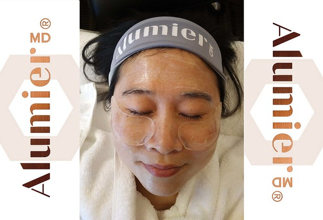 Alumier_treatment1