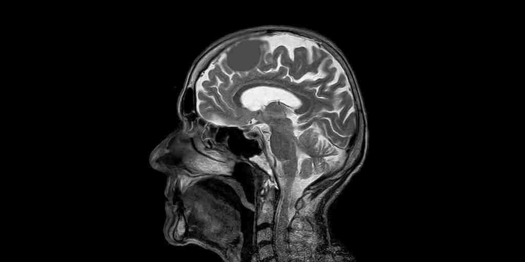 ERM-ondes-sonores-tumeur