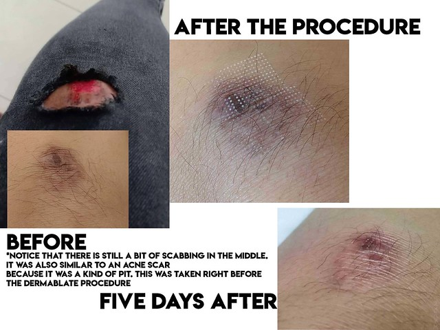 luminisce dermablate results after a week