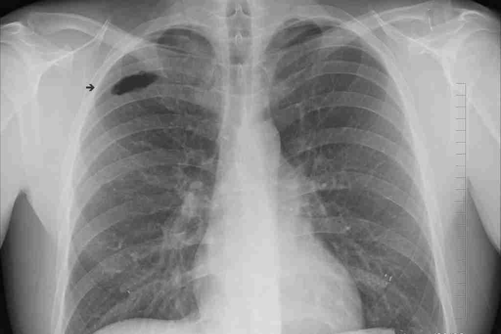 vaccin-expérimantal-contre-la-tuberculose