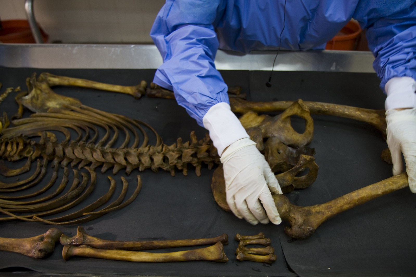 A skeleton being laid out on a table in a lab by a person wearing gloves