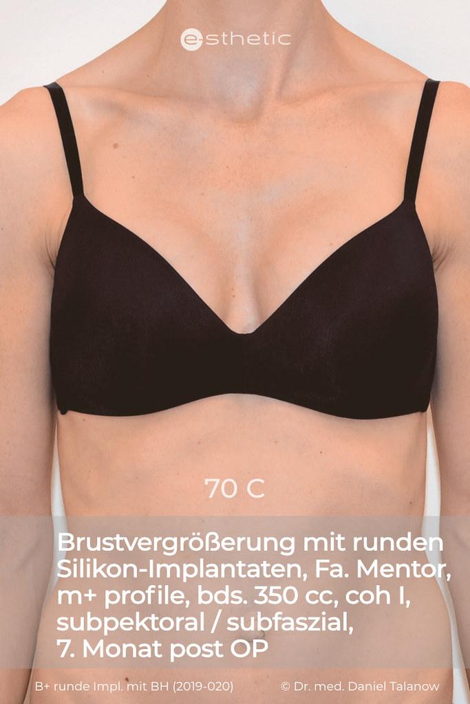 B brustvergrößerung a auf Brustvergrößerung A