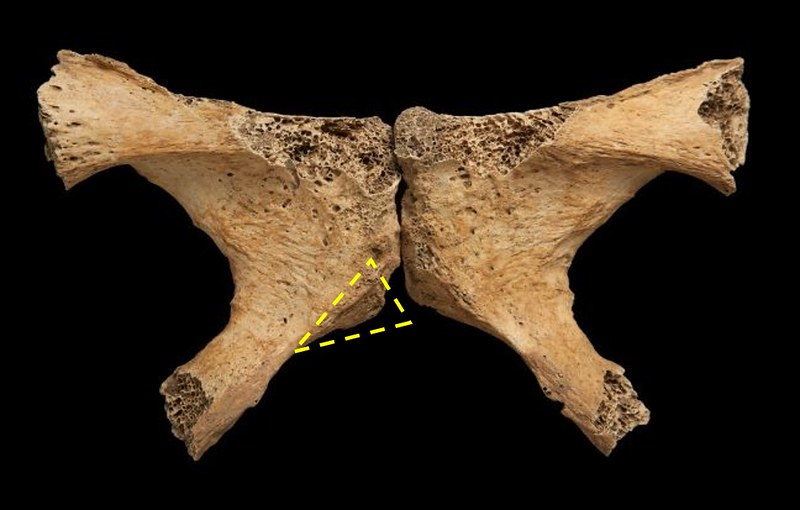 Female pubic bones with the ventral arc highlighted