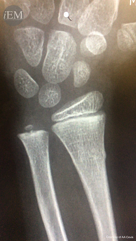 Torus Fracture - right arm 4