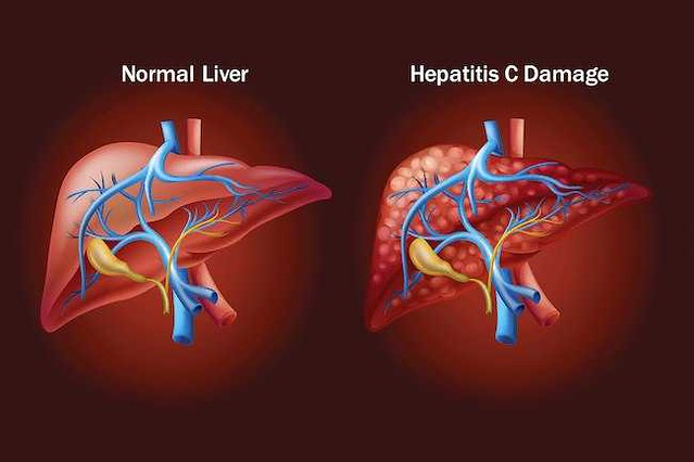 3602 How Hepatitis C affects your nervous system 01