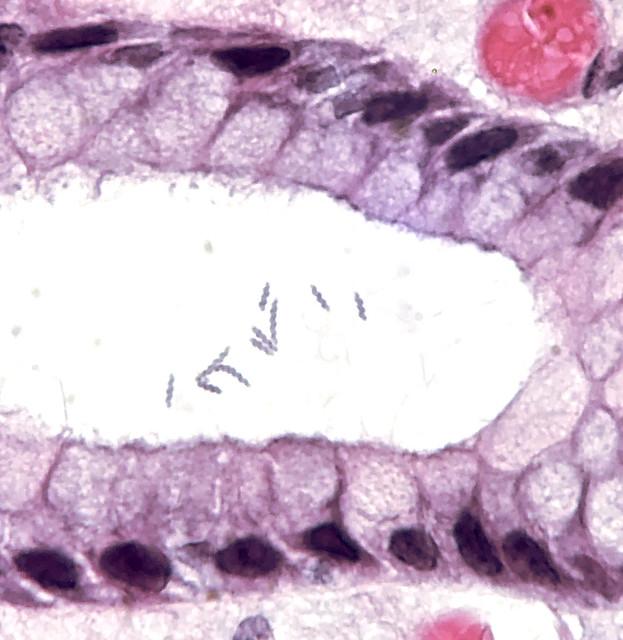 Helicobacter heilmannii in gastric mucosa