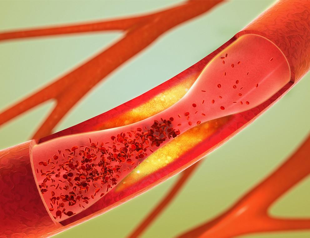 artères bouchées