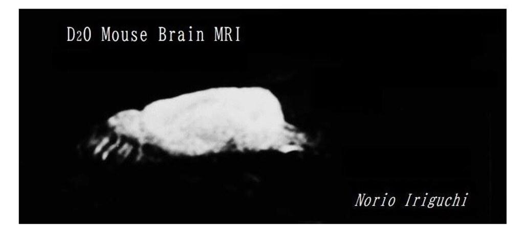 老鼠腦部組織內的氫被氘替換後的核磁共振造影。