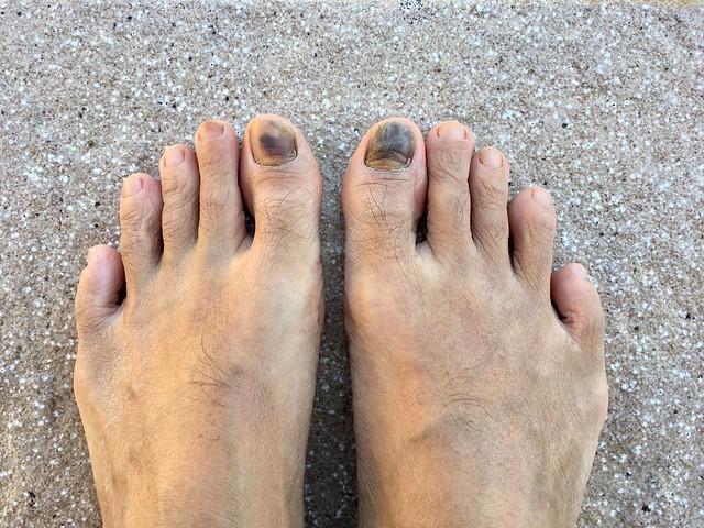 my feet after PYT100 2019