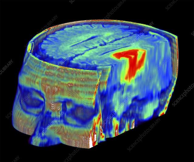 Brain tumour, 3D-MRI scan