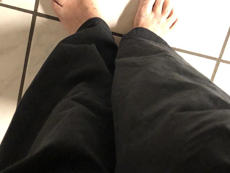 Left leg shorter
