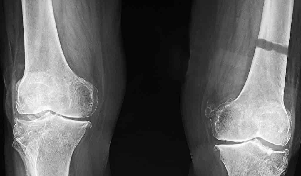 un-pensement-répare-les-os-brisé-en-retenant-un-produit-biochimique