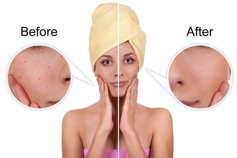 奈米拋光模式給你短短的修復期,是你要改善肌膚的好選擇,奈米拋光模式可以治療光老化、改善臉部細紋、治療淺層痘疤、修復淺層毛孔。