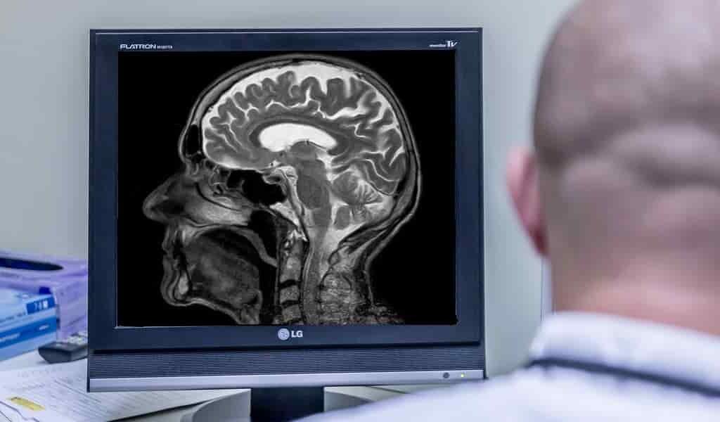 un-IRM-peut-prédire-intelligence-des-enfants