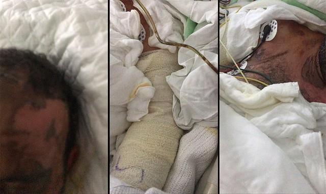 5501 2nd wife pours Acid on Saudi Husband while he was asleep