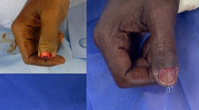 5505 Saudi Hospital implants an amputated thumb successfully