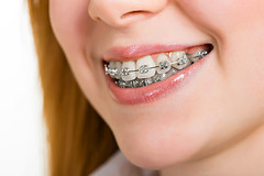 Diş telleri acıtıyor mu?