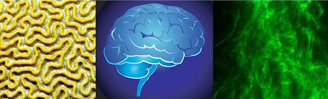 5 Things You Can Do to Improve Your Brain Health