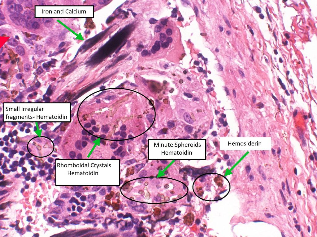 Hematoidin-Spleen- Early Gamna-Gandy Body