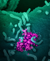 Wed, 2020-02-12 16:42 - This scanning electron microscope image shows SARS-CoV-2 (round magenta objects) emerging from the surface of cells cultured in the lab. SARS-CoV-2, also known as 2019-nCoV, is the virus that causes COVID-19. The virus shown was isolated from a patient in the U.S. Image captured and colorized at NIAID's Rocky Mountain Laboratories (RML) in Hamilton, Montana. Credit: NIAID
