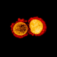 Tue, 2020-03-10 13:49 - Transmission electron micrograph of SARS-CoV-2 virus particles, isolated from a patient. Image captured and color-enhanced at the NIAID Integrated Research Facility (IRF) in Fort Detrick, Maryland. Credit: NIAID
