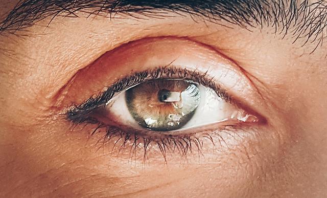 12 de marzo_dia mundial del glaucoma