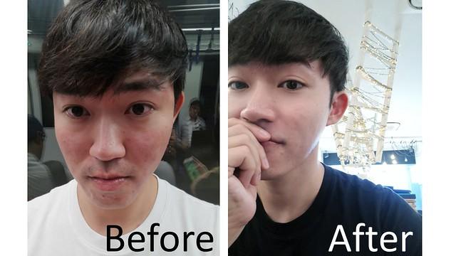 AGNES Treatment for pimples