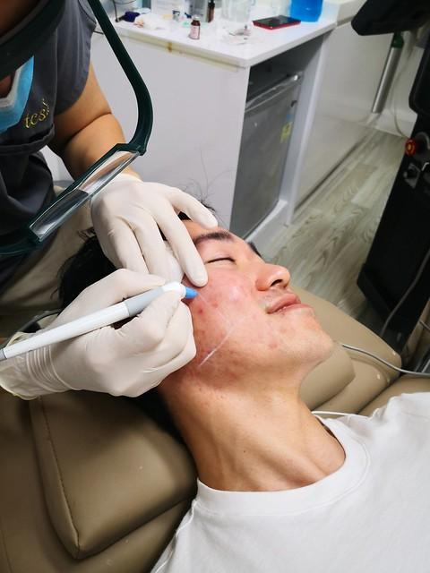 AGNES Treatment for Acne