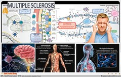 Multiple sclerosis ; Causes and Treatment