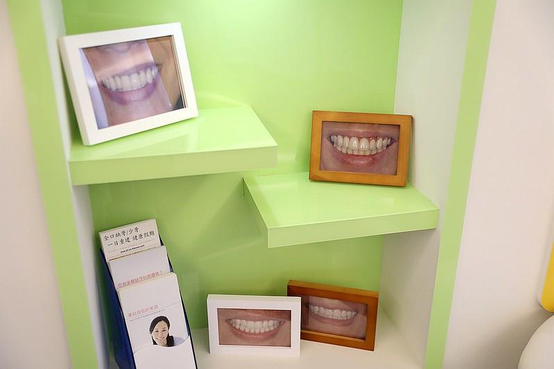 品御牙醫-新竹植牙推薦029