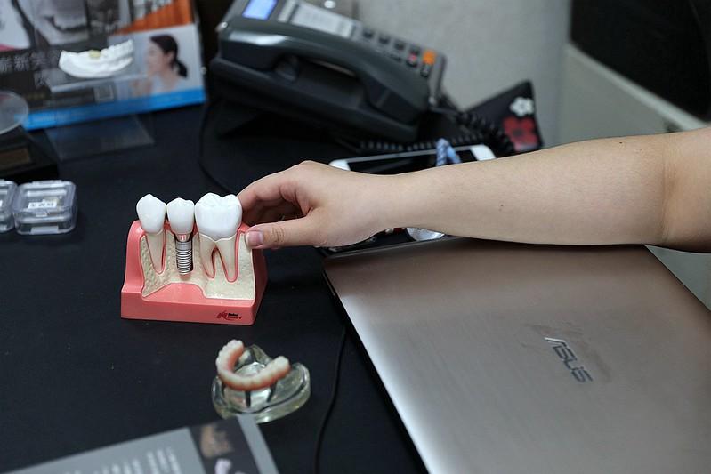 品御牙醫-新竹植牙推薦071